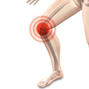 Alterserkrankung - Alterskrankheiten: Arthrose + Gelenkschmerzen